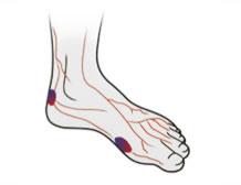 Sukkersyge og fødder